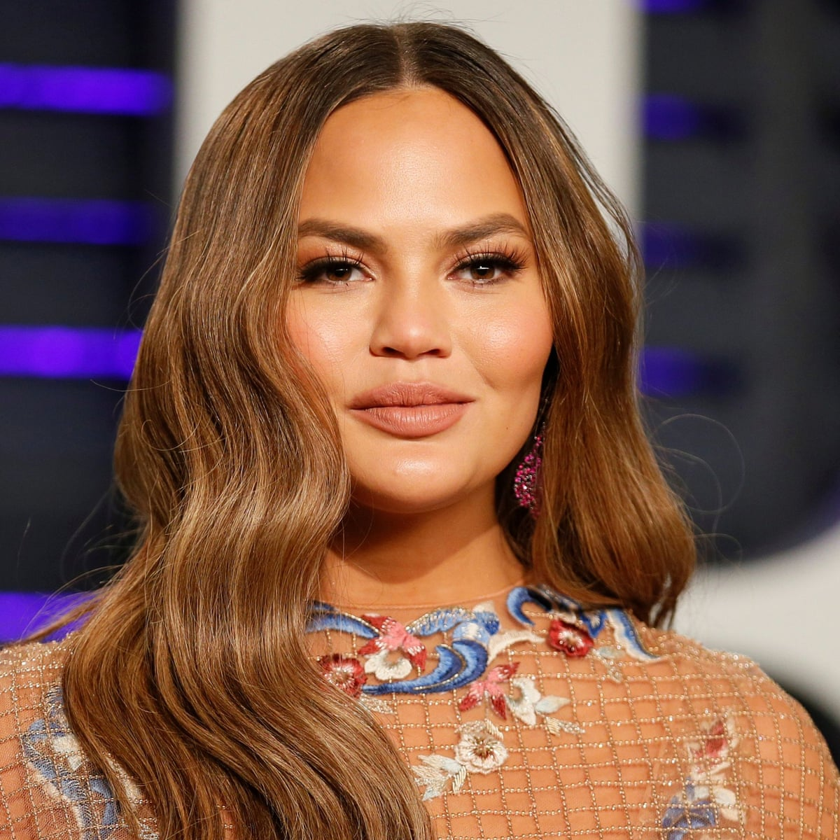 Chrissy Teigen Reveals She Underwent Procedure to Have Fat Removed From Her Cheeks