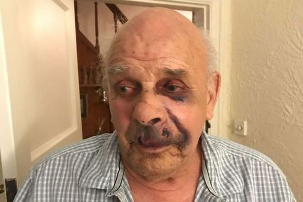 'I thought I'd die on my bedroom floor' - OAP tells of brutal attack by intruders