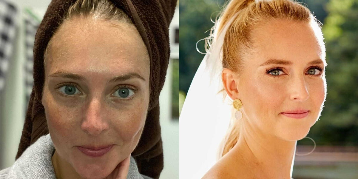 New Skincare Routine Before My Wedding Made My Skin Glow: How I Did It