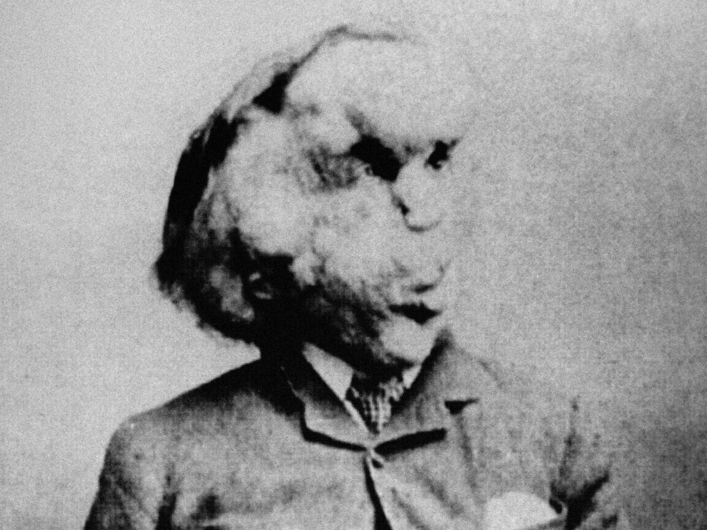 'Modern-day freak show': Thousands sign petition to stop Elephant Man dissection event